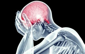 x-ray udar mózgu