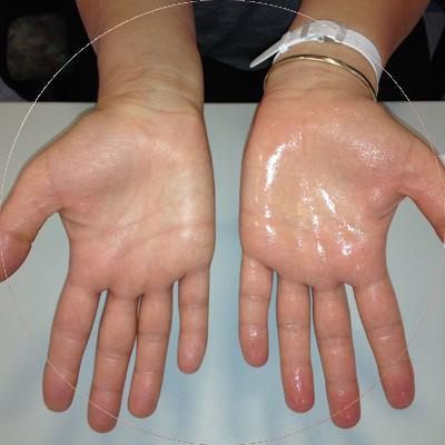 Nadpotliwość dłoni